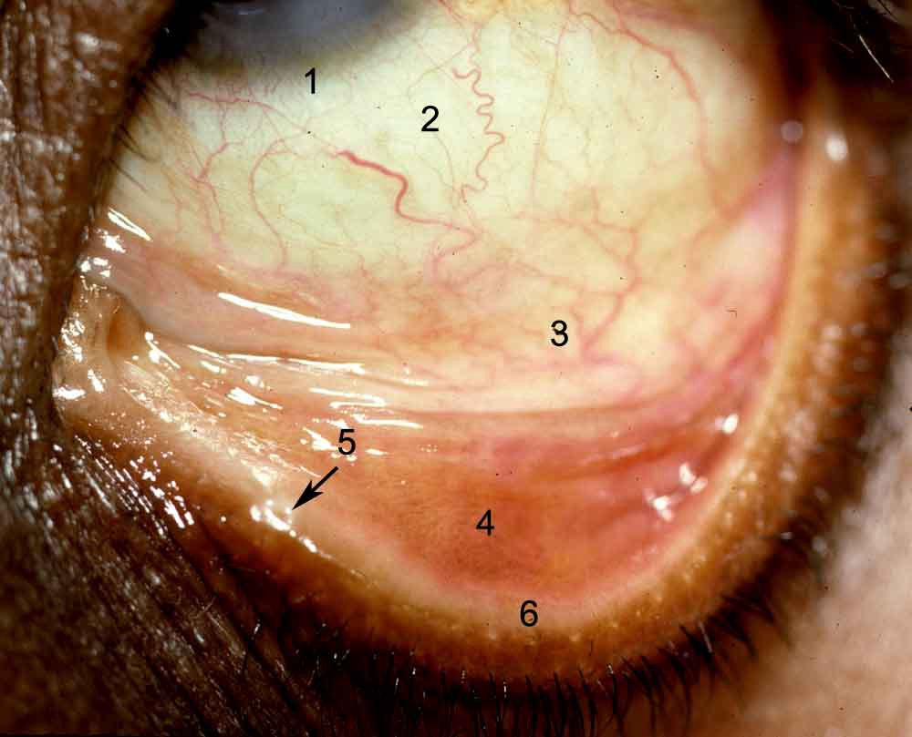 ANATOMY OF THE HUMAN EYE: Conjunctiva (answers)