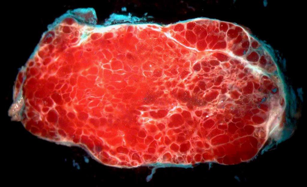 vaginal liver bleeding hemangioma
