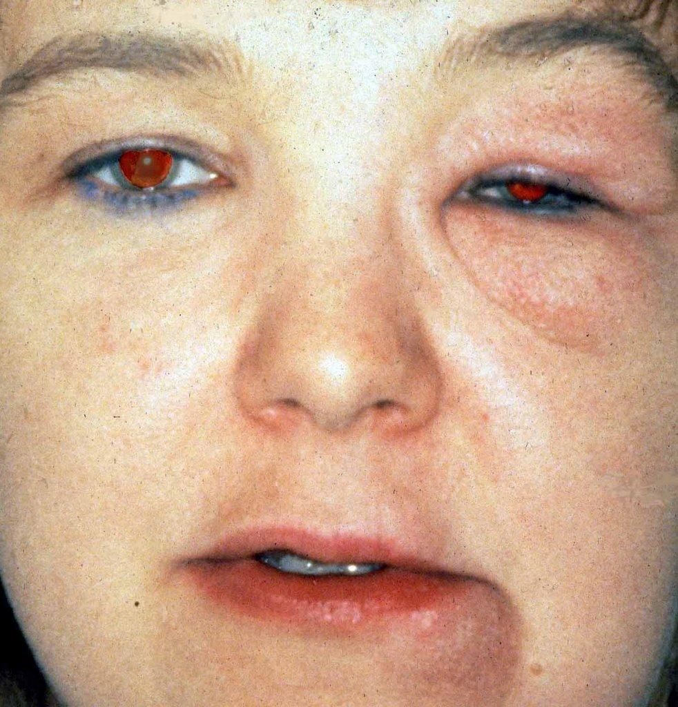 of Melkersson-Rosenthal Melkersson Rosenthal Syndrome