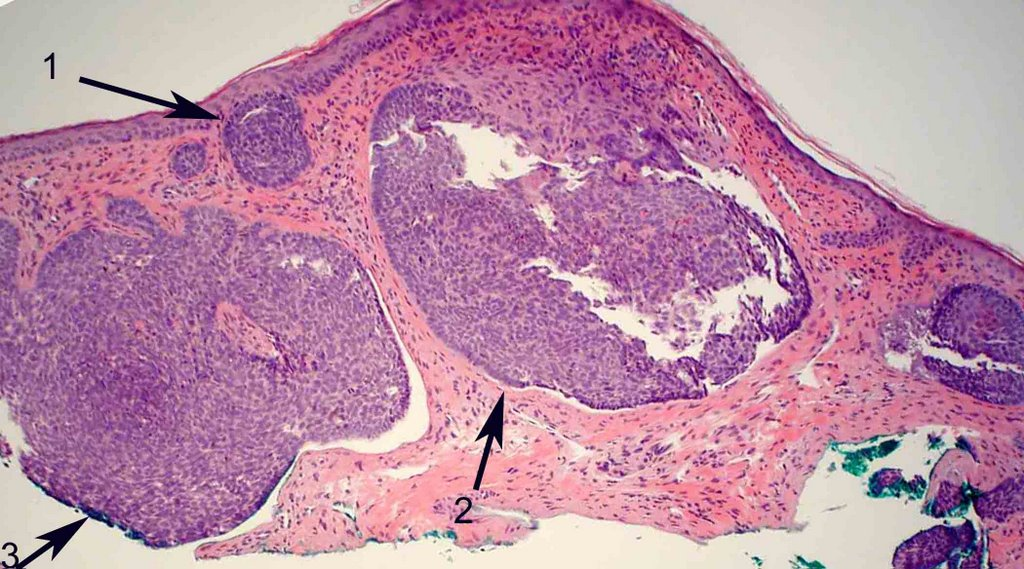 Ocular Pathology: What is basal cell carcinoma?