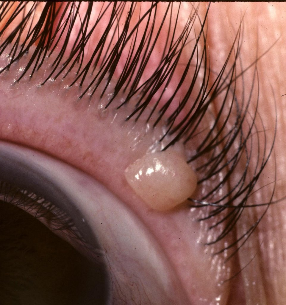 Ocular Pathology: What is a nevus of the eyelid?