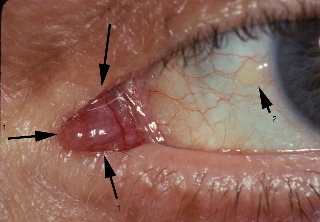 Ocular Pathology: What is an oncocytoma of the caruncle?