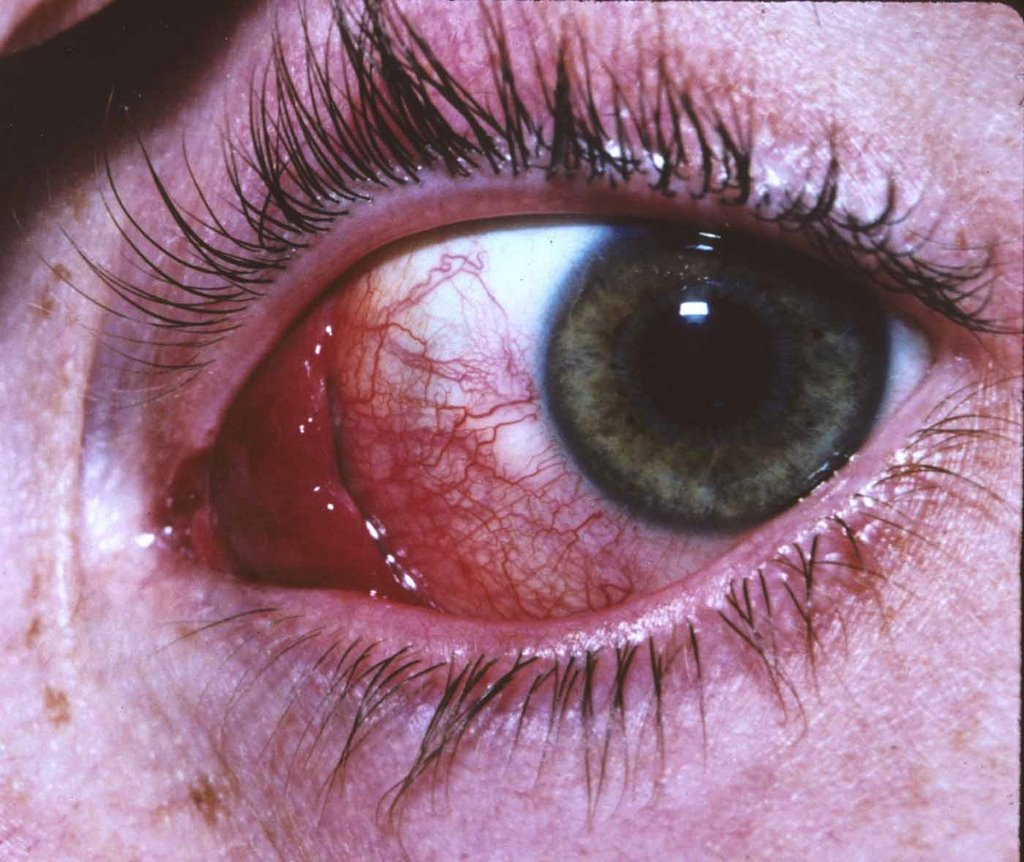 Ocular Pathology: What is conjunctival hemangioma?