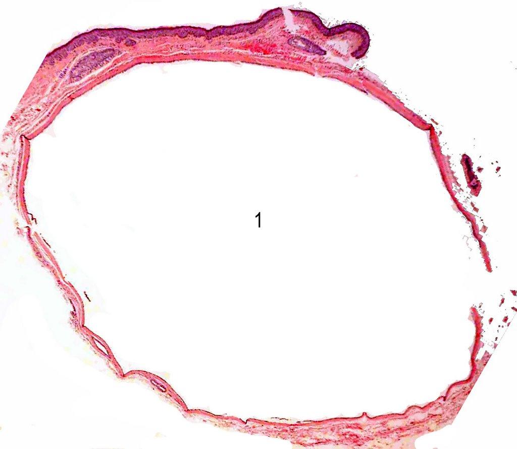 Ocular Pathology: Eccrine Hidrocystoma or Ductal Cyst