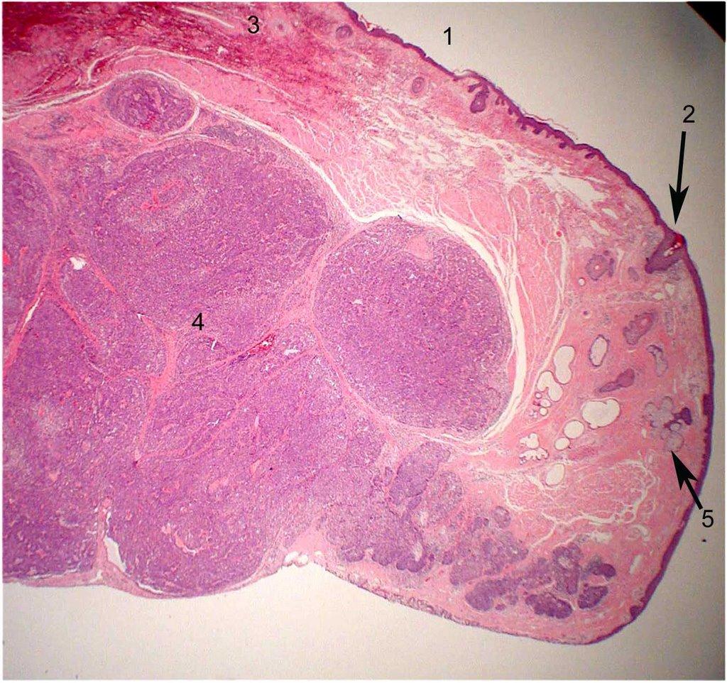 Sebaceous carcinoma = الكارسينوما الدهنية